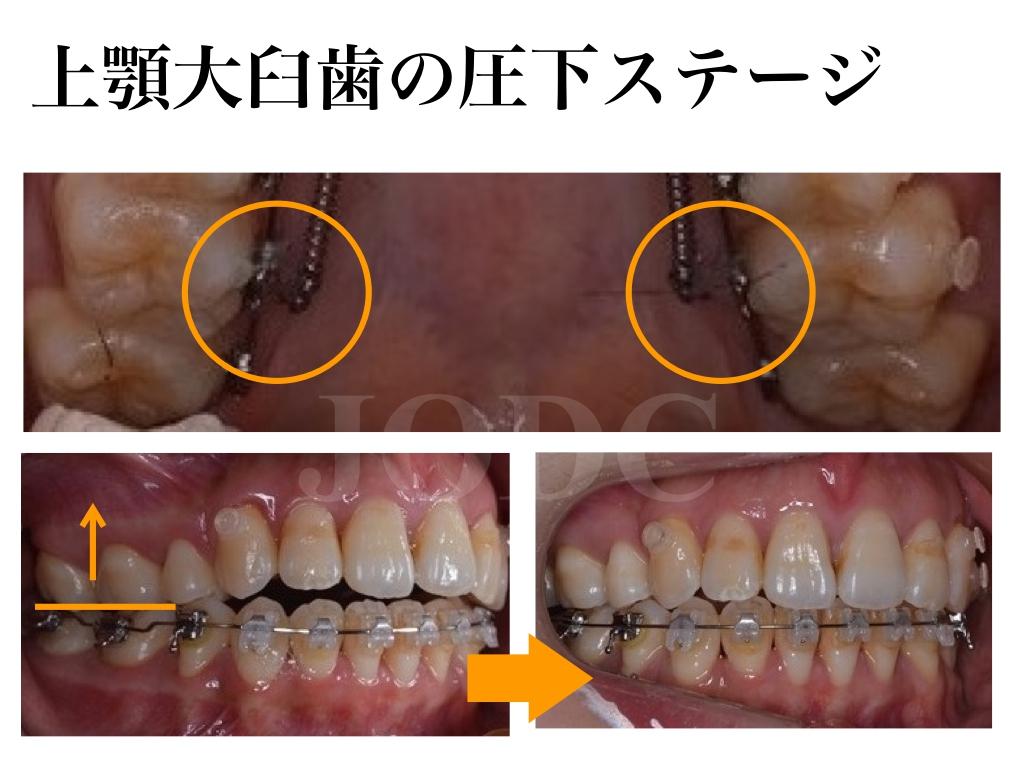 大臼歯の圧下